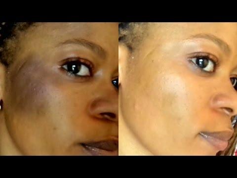 How to Treat Sunburn fast  on a Dark Skin