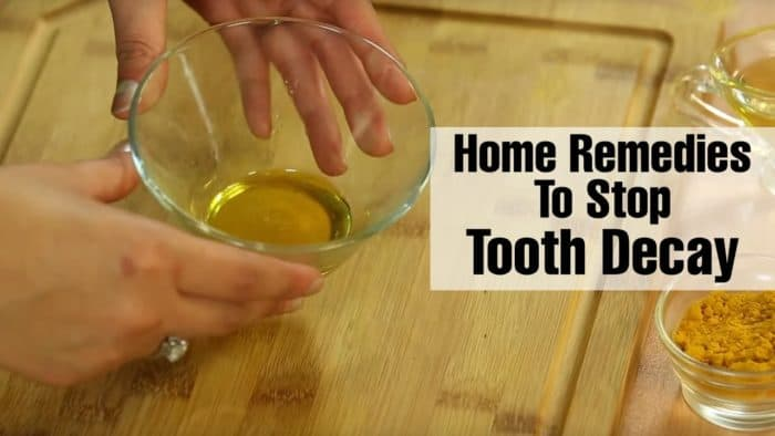 home remedies for treating cavities and tooth decay