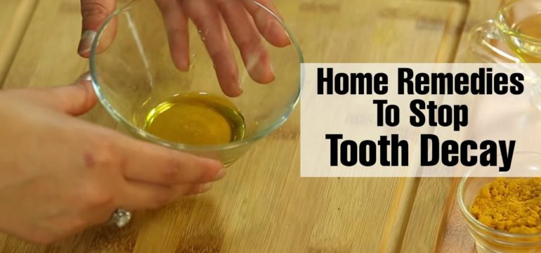 home-remedies-for-treating-cavities-and-tooth-decay