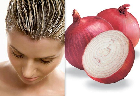 Onion Juice remedy for hair growth